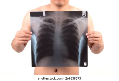unidentify person showing x-ray film isolated on white background