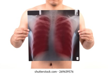 unidentify person showing x-ray film with red label isolated on white background
