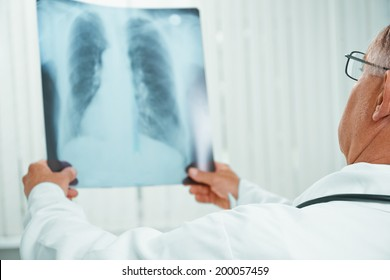Unrecognizable older man doctor examines x-ray image of lungs in a clinic