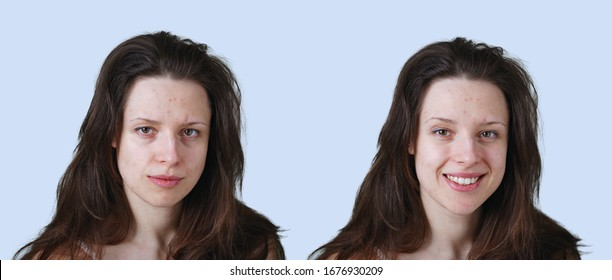 Unretouched image of young female looking insecure about her skin condition compared to her smiling feeling good in her own natural skin