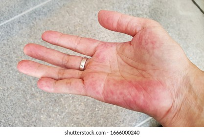 Unusual red on the palm hand from SLE symptom effect blood system.  Systemic lupus erythematosus (SLE) is a chronic disease caused by self-immunity which causes effects on the organs and blood system.