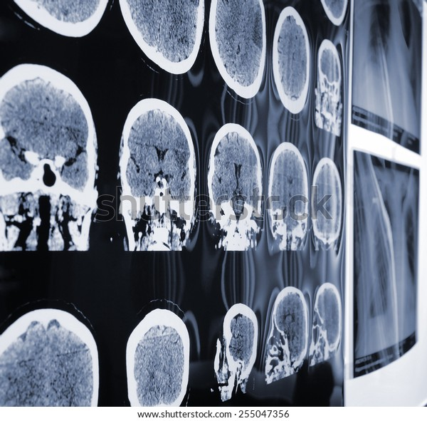 Unusual view of the MRI, X-ray images of the patient during discussion