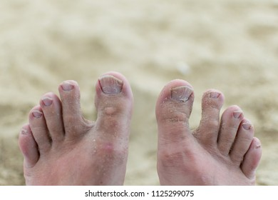Unwell groomed toenails. Fungus on the nails.