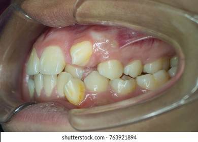 upper and lower canine crowding teeth on left side of oral cavity