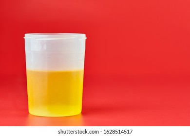 Urinalysis for urolithiasis in container. Urine samples for analysis in laboratory. Kidney stone disease self health examination. Danger or warning red background, copy space.