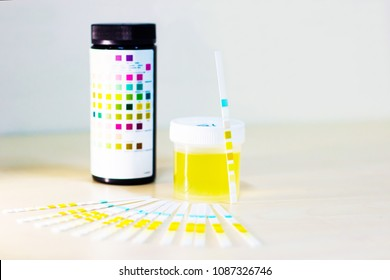 urine sample along with dip stick uristix for analyzing urine glucose protein in diabetes