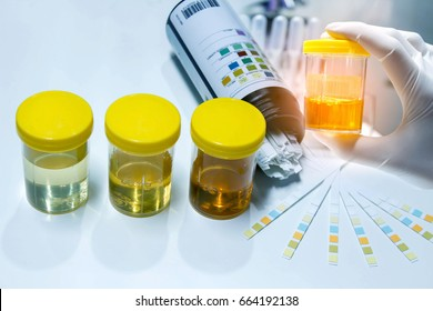 Urine sample with reagent strip for urinalysis in laboratory