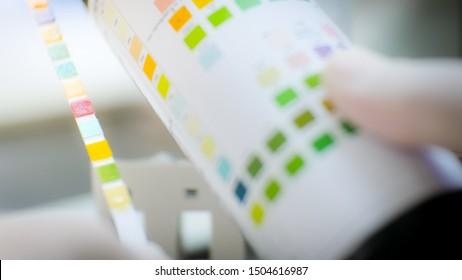 Urine strip test on blurred background medicsl science concept.