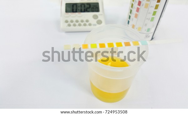 Urine test strip or dipstick test used to determine pathological changes in a patient urine sample. The test read result in 60 to 120 seconds after immersed strip in urine specimen. Selective focus.
