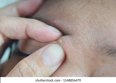 The use of acne and inflamed hands. On the face between the brows.