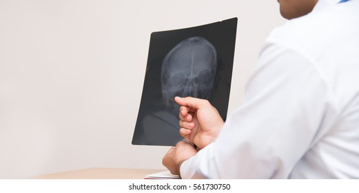 Use the doctor's x-ray of the patient describes symptoms. And disorders About abnormal head.