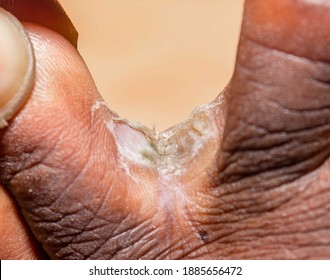Using hands to expose chronic interdigital athlete's foot between middle and ring toe of a right foot of early thirties male. Dead layers of soft skin and erosions are visible due to long infection
