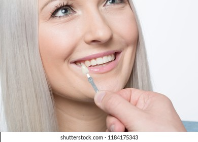 Using shade guide to check veneer of teeth at womans mouth