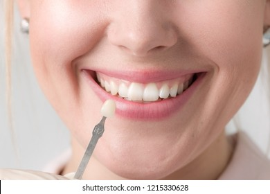 Using shade guide to check veneer of teeth
