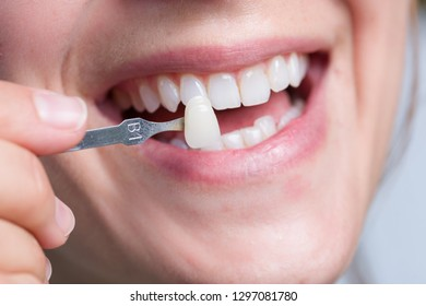 Using shade guide to check veneer of tooth
