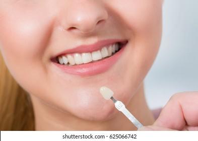 Using shade guide to check veneer of teeth
