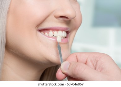Using a shade guide at woman's mouth to check veneer of tooth crown