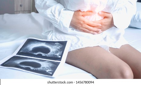 Uterus, ovaries, Ovarian cysts and abnormalities in cells, Close to each other, woman sitting  closed to her stomach because of abdominal pain and a X-ray film.