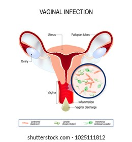 Vaginitis is an inflammation of the vagina. vaginal infection and causative agents of vulvovaginitis: gardnerella (bacterium), candida (fungal), trichomonas (protozoan parasite). Vaginal discharge.