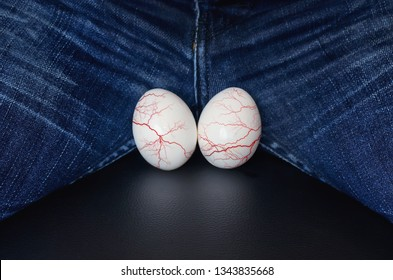 varicocele - male disease leading to infertility in men. the concept of risk urological diseases. White eggs - a symbol of man's balls. Varicose veins on the testicles.