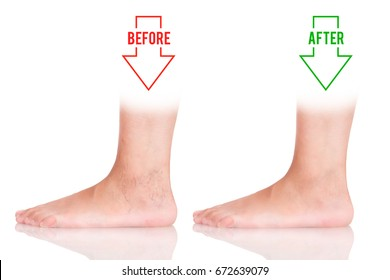 Varicose on the foot. Variants of varicose before and after. Treatment of varicose veins.