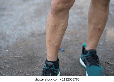 Varicose veins are appeared on male runner's right leg.