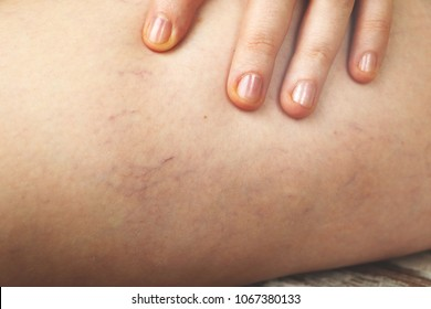 Varicose veins and capillary veins in the legs. Medical inspection and treatment