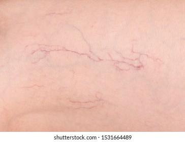 Varicose veins closeup. Varicose veins disease. A fragment of human skin with varicose veins.