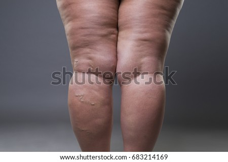 Varicose veins closeup, fat female cellulite legs on a gray background
