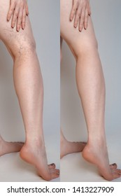 Varicose veins concept. Female legs with varicose veins and vasodilatation. Before and after