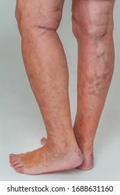 Dureri de picior tratament varice