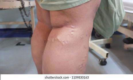 Varicose veins involving Right Lower Limb.