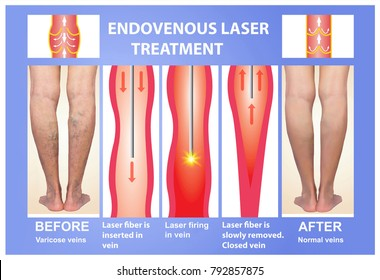 Varicose Veins and laser