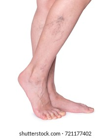 Varicose veins in the legs. Woman legs isolated on white.