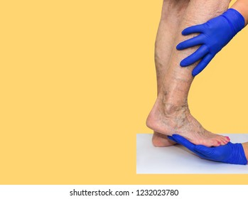 The varicose veins on female legs on colored background. Phlebology  and DVT