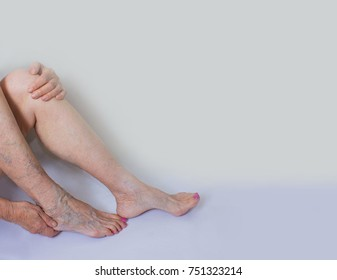Varicose veins on a female legs. Phlebology  and DVT