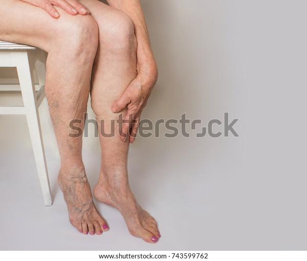 No pé doloroso varizes