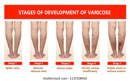 Varicose veins on a female senior legs. The stages of varicose veins. The old age and sick of a woman. Varicose veins on a legs of old woman. The varicosity, spider veins, edema, illness concept