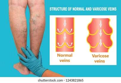 Varicose veins on a female senior legs. The structure of normal and varicose veins. Lower limb vascular examination because suspect of venous insufficiency. The female legs on green background