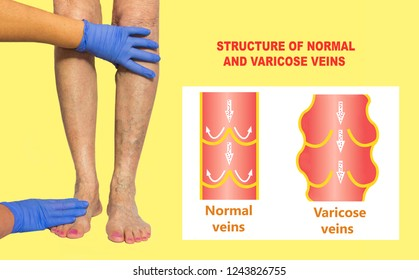 Varicose veins on a female senior legs. The structure of normal and varicose veins. Collage. Lower limb vascular examination because suspect of venous insufficiency. The female legs on colored