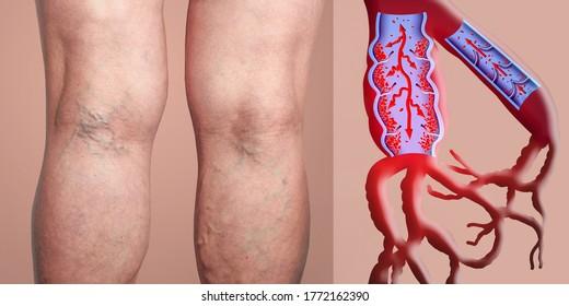 stock foto varicose ulcere pe picioare