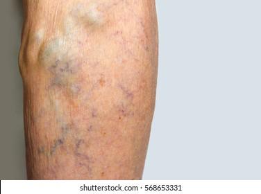 Varicose veins on a female senior leg close up