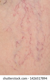 Varicose veins on human skin. Leg skin repair and treatment concept for elderly and aged people. Healthcare, medical and aesthetic concept.
