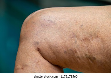 Varicose veins on knees and  legs in Senior women, Body concept
