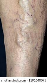 Varicose veins on the leg - Shutterstock ID 1191640075