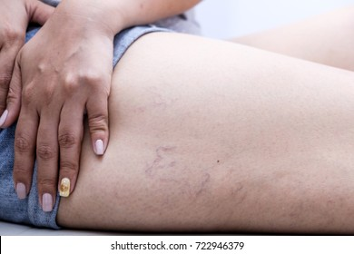 varicose veins on a leg in women. ,Health care concept