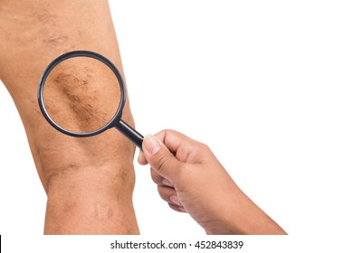 Varicose veins on the legs of middle-aged women
