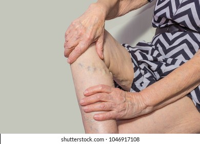 Varicose veins on a legs of old woman on pastel. The varicose, spider veins, edema, illness concept. Senior pensioner woman with hands on legs.
