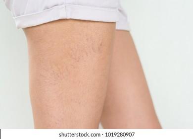 Varicose veins on the skin of leg
