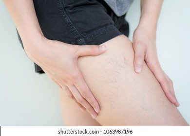 Varicose veins on the skin of leg